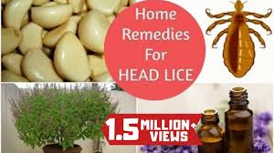 home remes to get rid of head lice