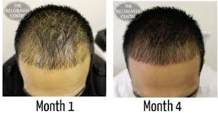 General Hair Thinning – Regrow Hair