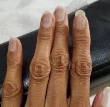 ayurveda and natural nail rehab