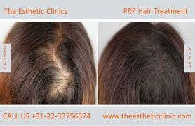 best prp hair treatment cost india