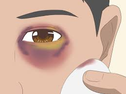 how to make a fake black eye 12 steps