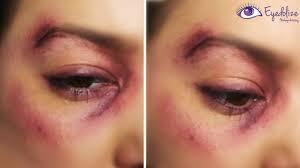 bruised black eye makeup tutorial by