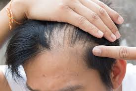 taxotere hair loss claims us recall news