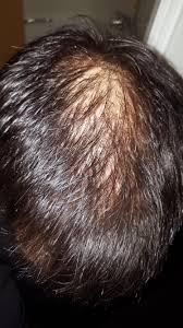hair loss jason shankey male