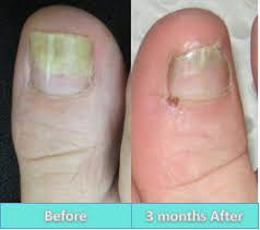 fungal nail laser perth podiatric surgery