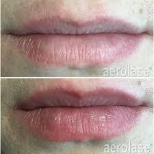 non filler lip rejuvenation with laser