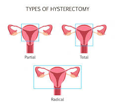 Body After a Hysterectomy ...