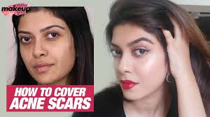 how to cover acne scars pimple marks