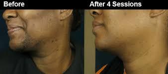 laser hair removal helps ingrown hairs