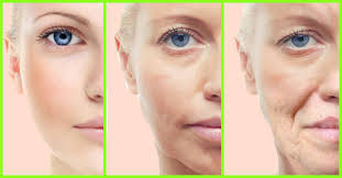 home remes to treat skin tightening