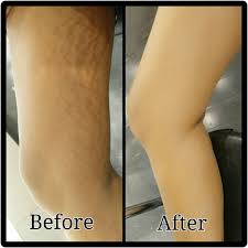 makeup for stretch marks on arms
