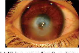 corneal hydrops mimicking