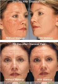 acne camouflage makeup saubhaya