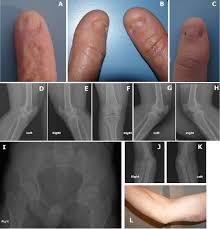 nail patella syndrome causes symptoms