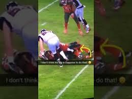 Adarius Glanton Breaks His Leg Falcons Vs. Buccaneers (WARNING ...