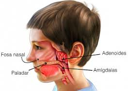 Adenoides e amígdalas - Cliaod - Otorrinolaringologia em Brasília