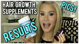 how to grow hair fast supplements