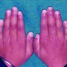hands showing dystrophic thin and