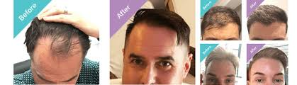 unshaven hair transplant turkey u fue