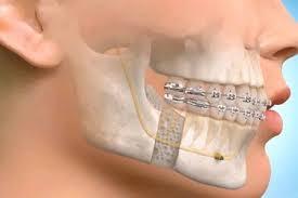 Oral & Maxillofacial Surgery - DH Dental Clinic Lahore