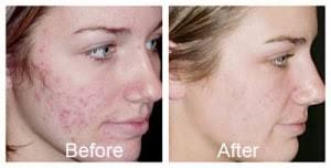 Acne Scar Removal Treatment Detroit, Michigan - Novi & Troy
