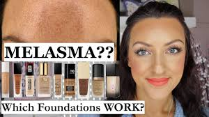 melasma which foundations cover it