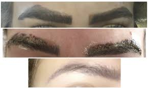 non laser tattoo removal epic brows
