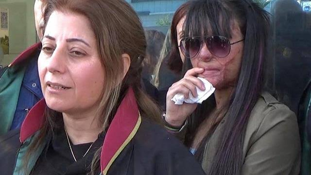 Berfin'e asitle saldıran şahıs müebbetle yargılanırken 13 yıl 6 ay ceza aldı