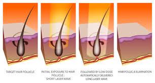skinologica laser hair removal