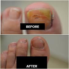 laser nail fungal treatment toenail