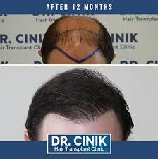dr cinik hair transplant clinic