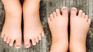 swollen feet during pregnancy natural