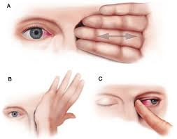 eye rubbing on the levels of protease