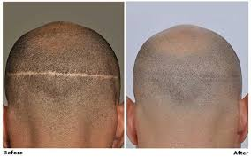 non surgical hair loss solutions hair