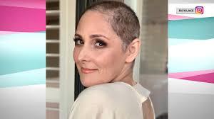 ricki lake s hair loss photos spark an