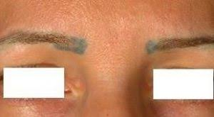 eyebrow laser tattoo removal