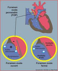 13Le Cardiaque et son adaption à la plongée V.Lafay