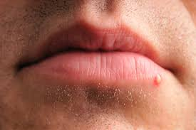 herpes cold sore vs pimple