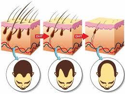 does smoking cause hair loss myth