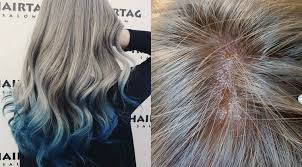 s pore left with burning scalp