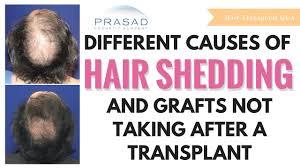 shedding after hair transplant