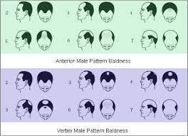 best homeopathic cines for alopecia