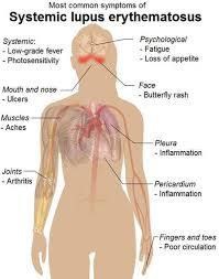 introduction and physiology of lupus