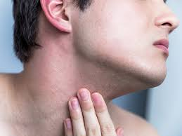 morphea symptoms causes and treatments