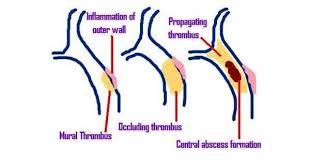 Lateral Sinus Thrombophlebitis Www Medicoapps Org