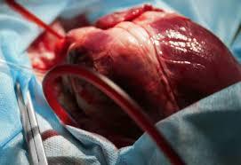 عملية القلب المفتوح في إيران | مستشفيات جراحة القلب في ايران ...