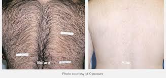 laser hair removal calgary ab