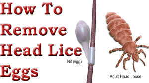 how to remove head lice eggs ह ड ज