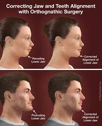 orthognathic surgery greenberg