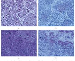 Figure 2 from Immunohistochemical Reactivity of the 14F7 Monoclonal  Antibody Raised against N-Glycolyl GM3 Ganglioside in Some Benign and  Malignant Skin Neoplasms | Semantic Scholar